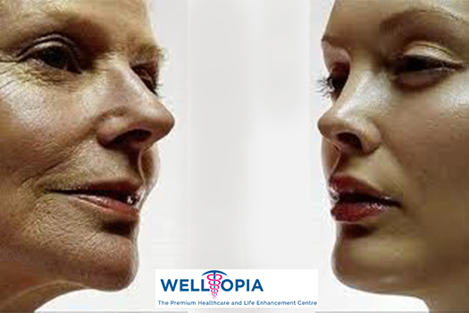 Anti Aging Treatment in Delhi NCR