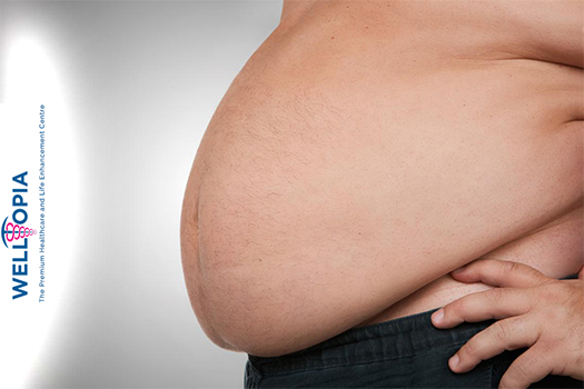 obesity specialist doctor in Delhi